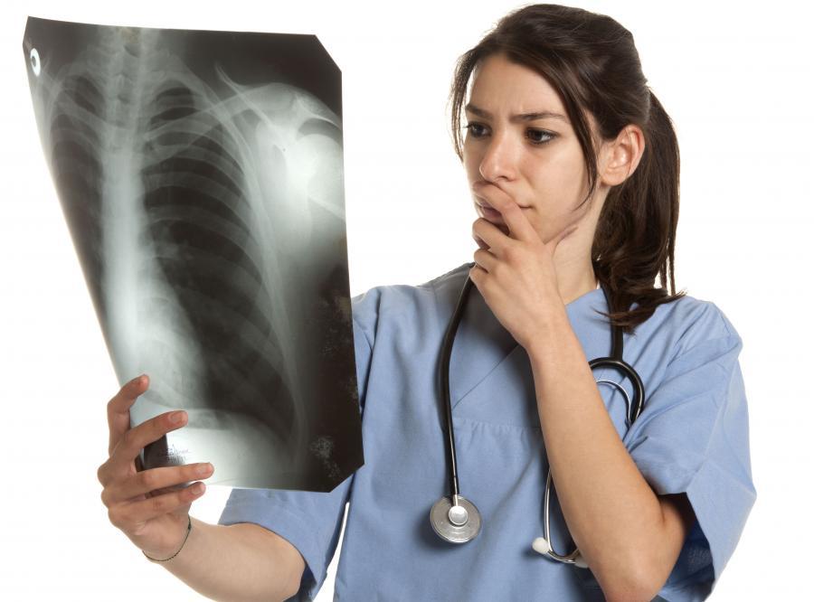 Udało się zahamować rozwój gruźlicy